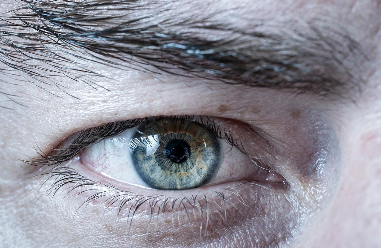 rechtes Auge